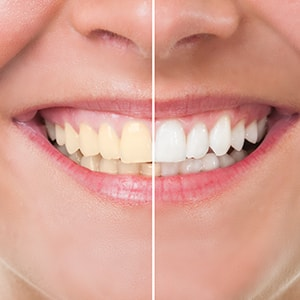 A before and after of someone using teeth whitening